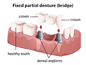 Dental Bridges |Northwood Family Dentistry