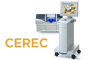 CEREC Crowns | Northwood Family Dentistry