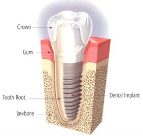 Dental Implant Restoration | Northwood Family Dentistry