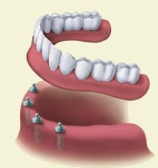 Dentures | Northwood Family Dentistry