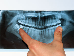 Dental X-ray | Northwood Family Dentistry