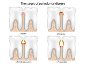 Gum Disease Treatment | Northwood Family Dentistry